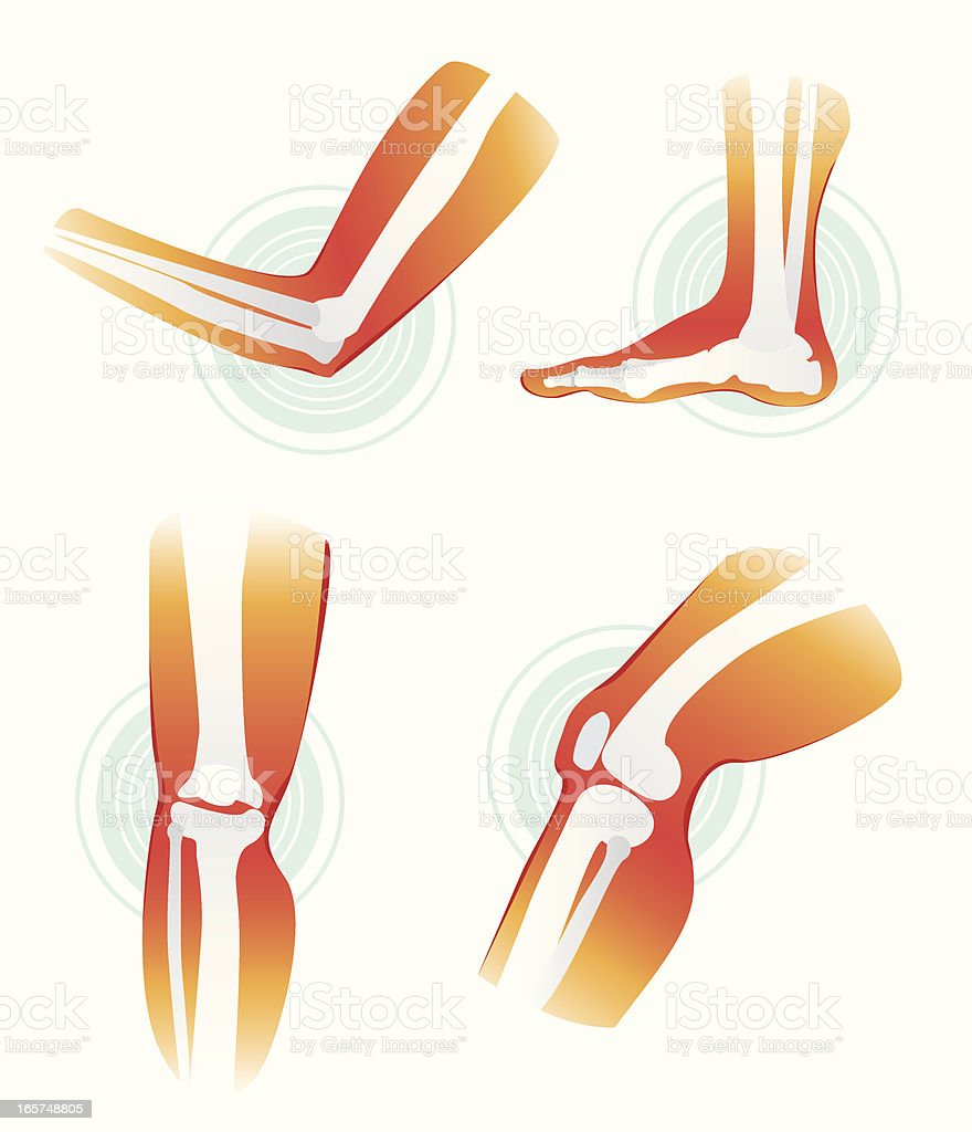 Pain in joints vector art illustration