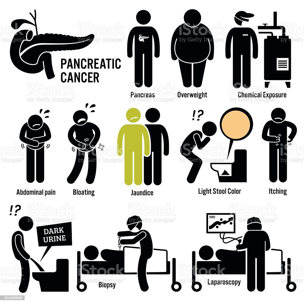Pancreatic Pancreas Cancer Illustrations vector art illustration