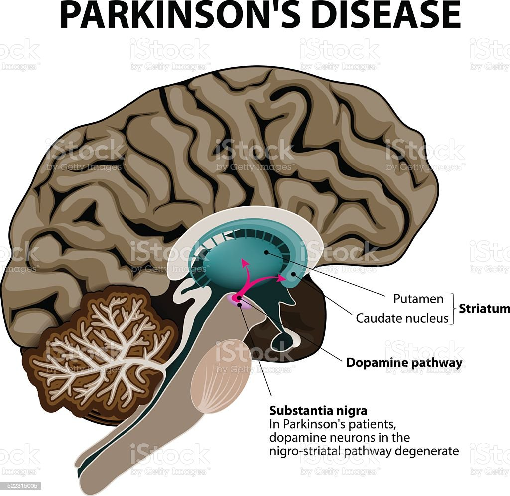 Parkinson's Disease vector art illustration
