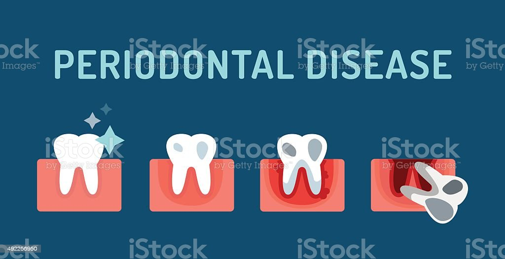 Periodontal disease stage steps vector illustration vector art illustration