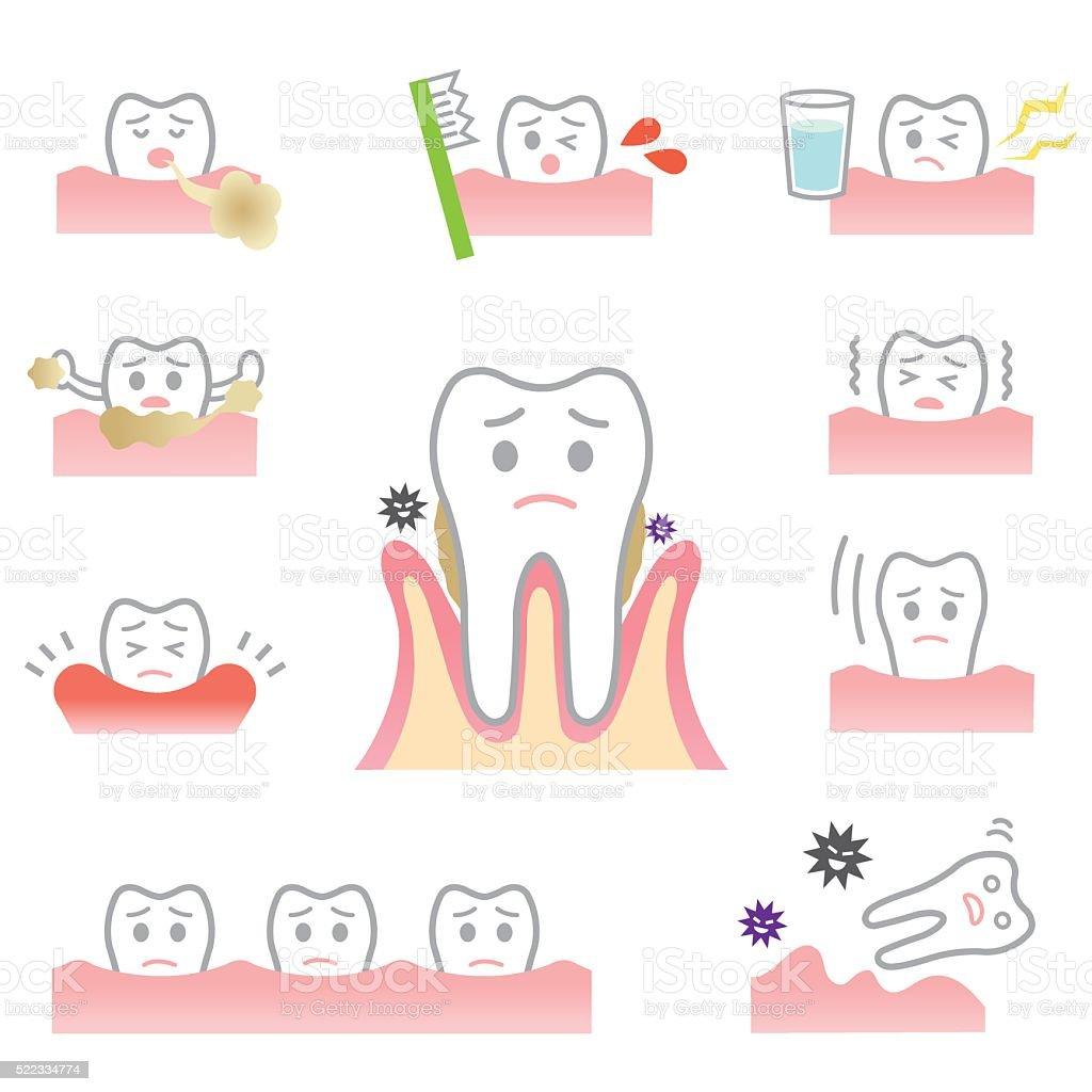 periodontal disease vector art illustration