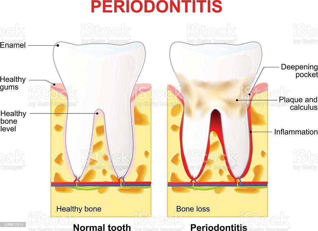 Periodontitis or pyorrhea vector art illustration