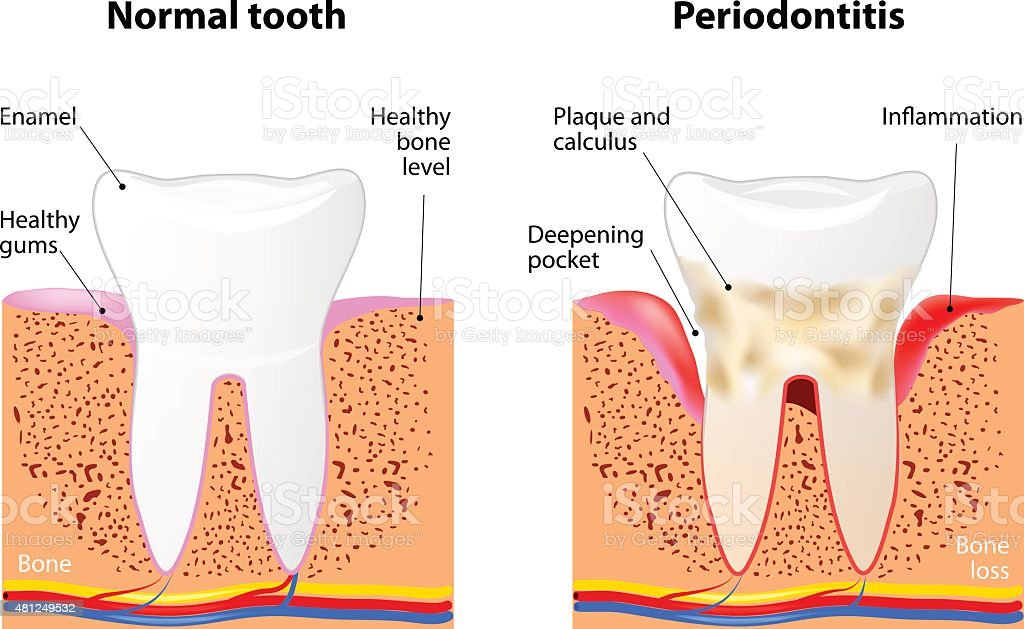 Periodontitis vector art illustration