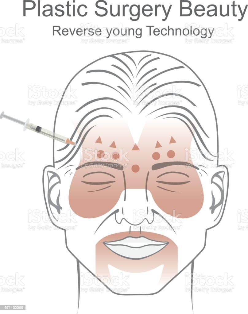 Plastic surgery beauty. vector art illustration
