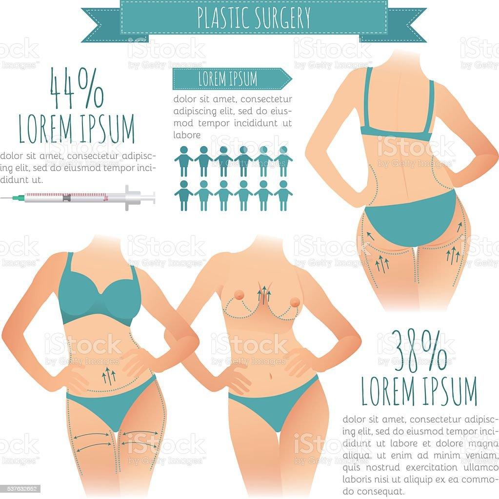 Plastic surgery infographic. vector illustrations of liposuction vector art illustration