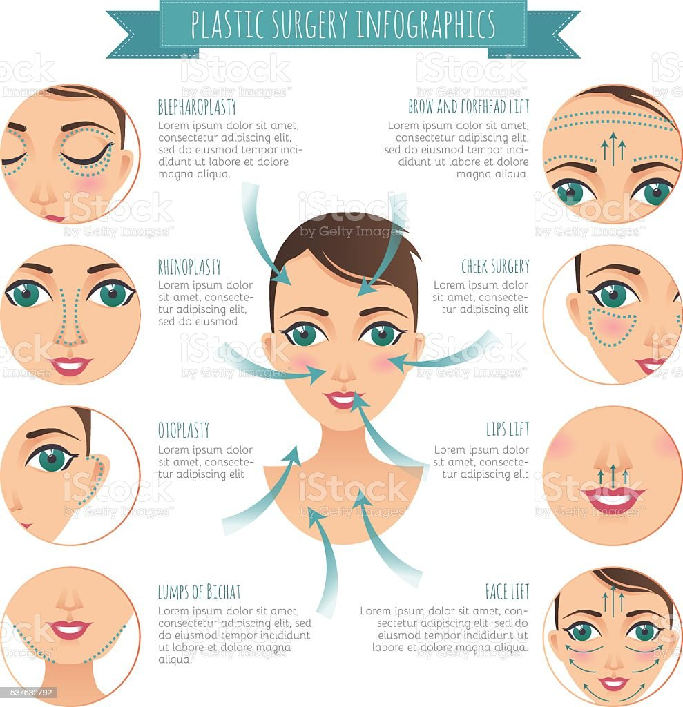 Plastic surgery infographics. rhinoplasty, lumps of Bichat, lift vector art illustration