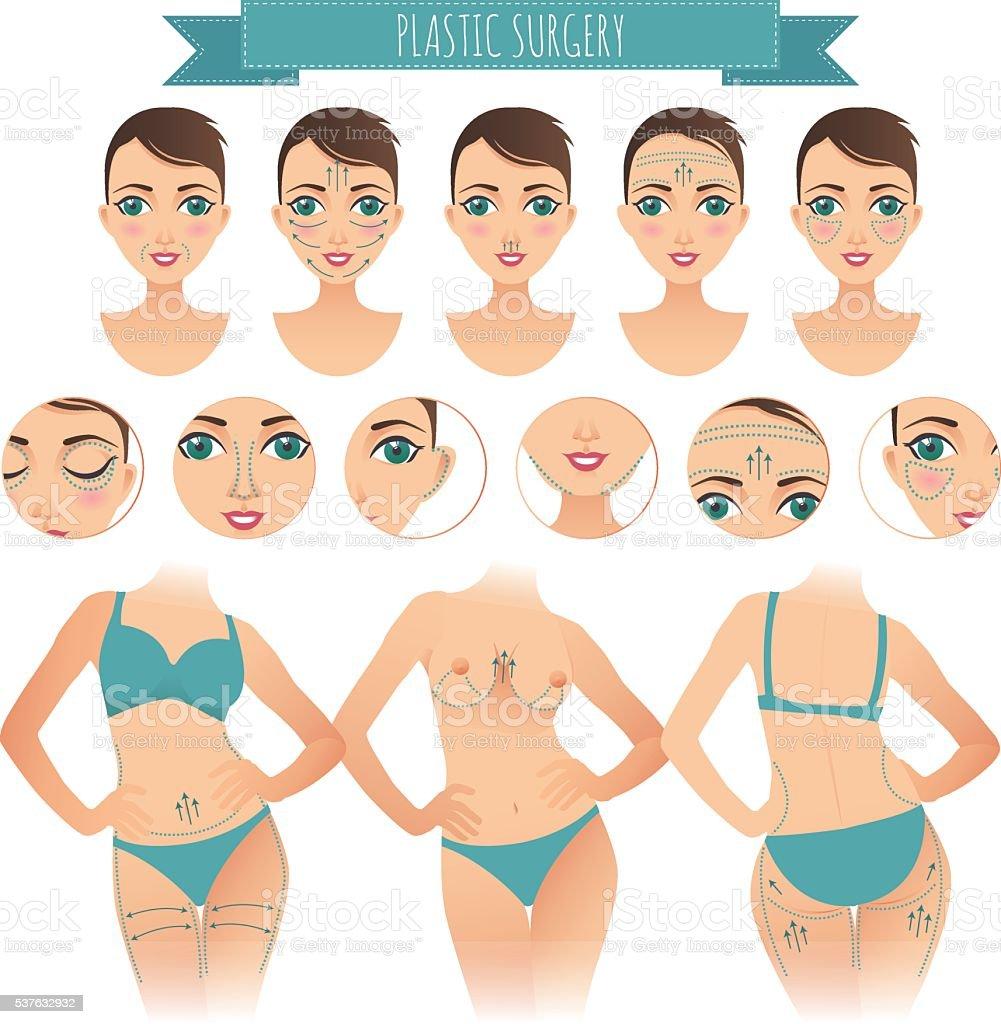 Plastic Eye Surgery Clip Art – Clipart Download