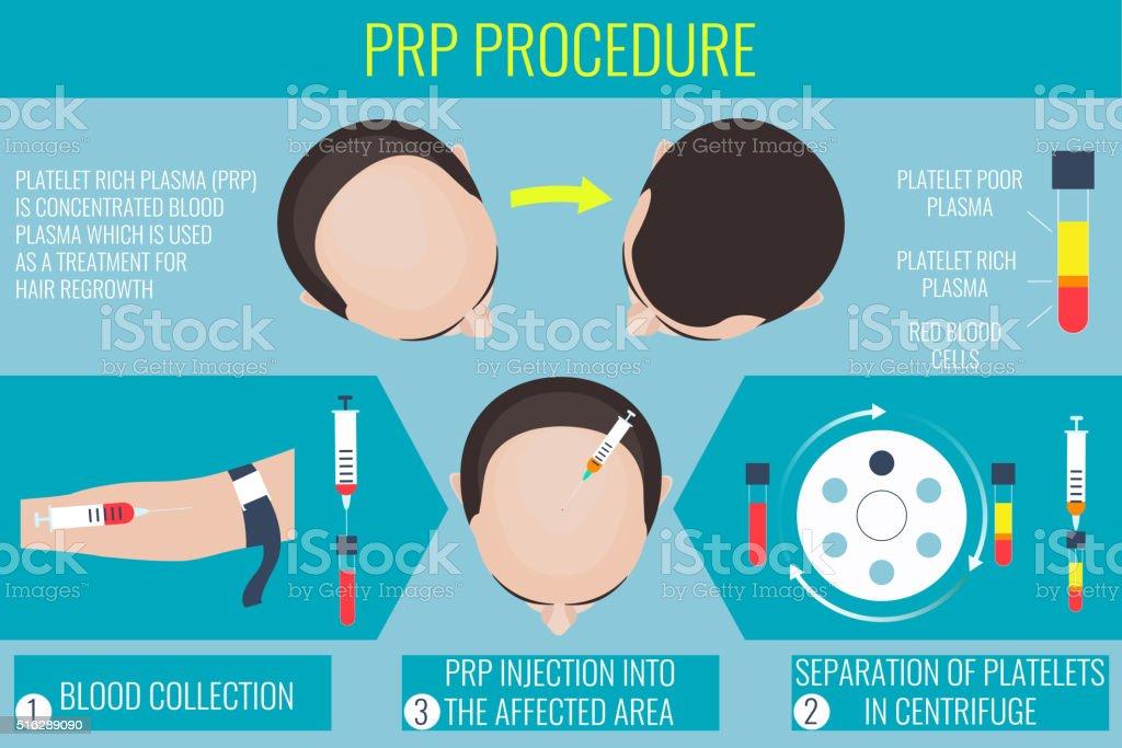 Platelet rich plasma procedure vector art illustration
