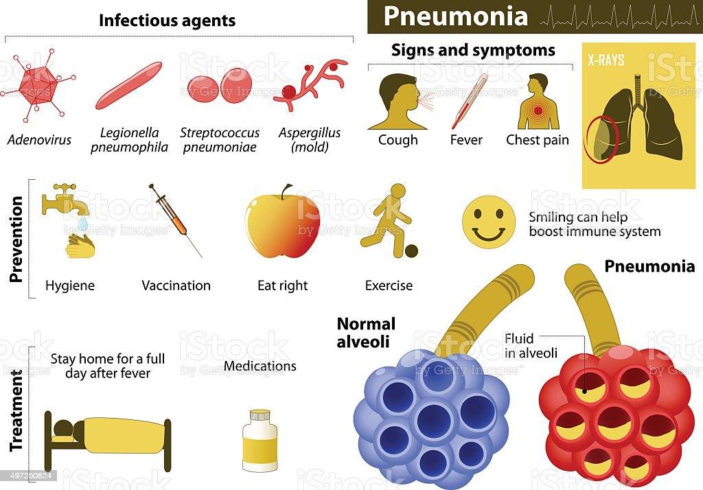 Pneumonia vector art illustration