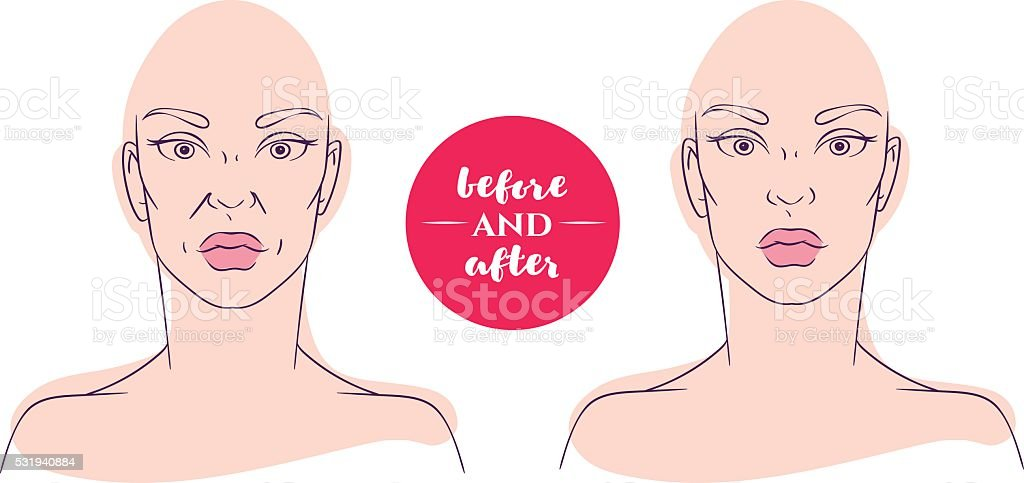 Portrait of a woman before and after with cosmetic defects vector art illustration