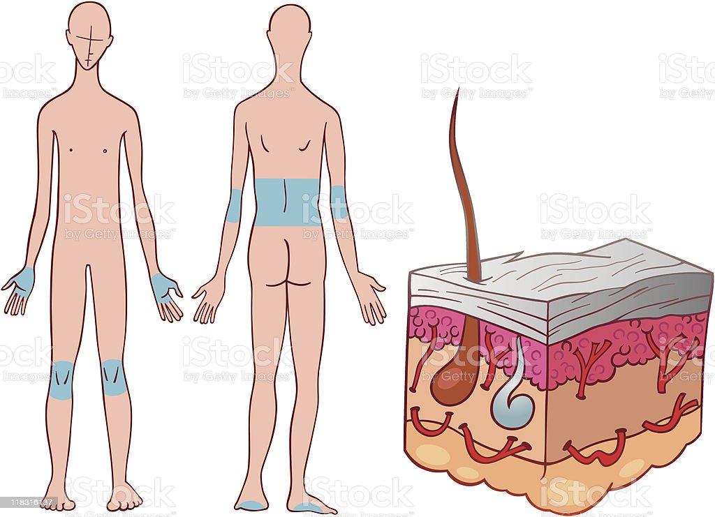 psoriasis disease diagram royalty-free stock vector art