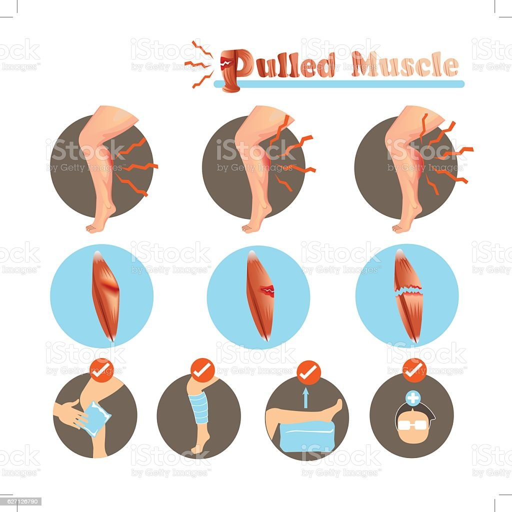 Pulled Muscle vector art illustration