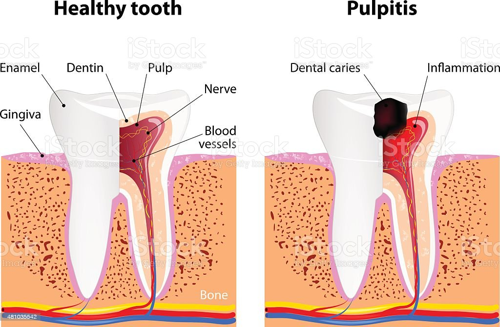 Pulpitis and Healthy tooth vector art illustration