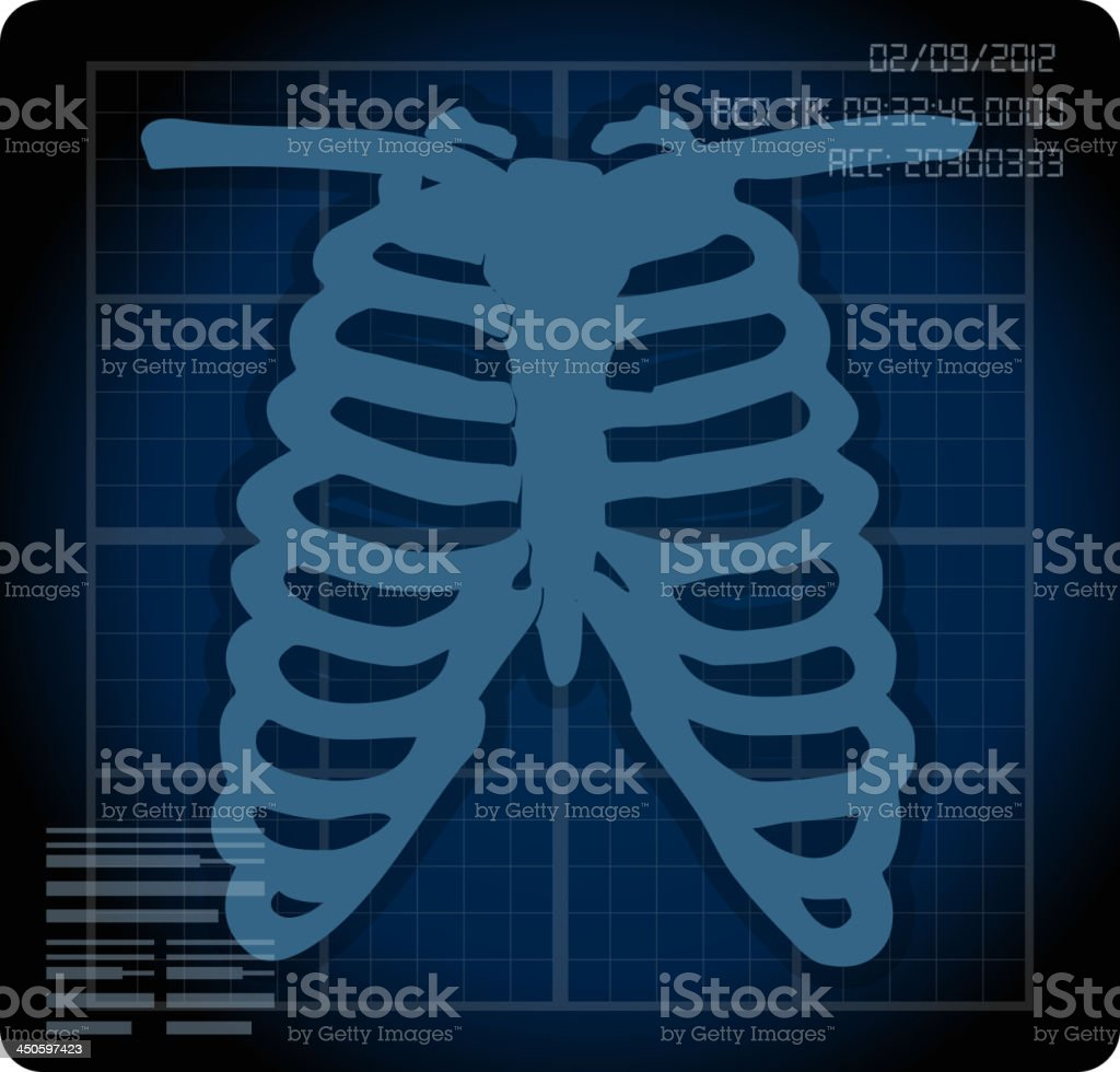 X ray royalty-free stock vector art