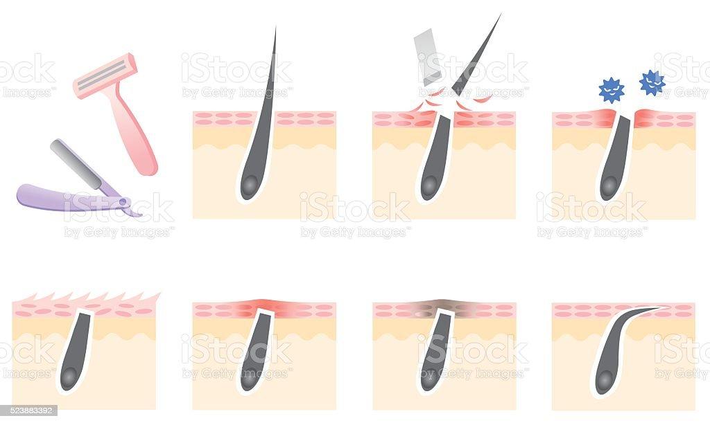 razor shaving skin troubles vector art illustration