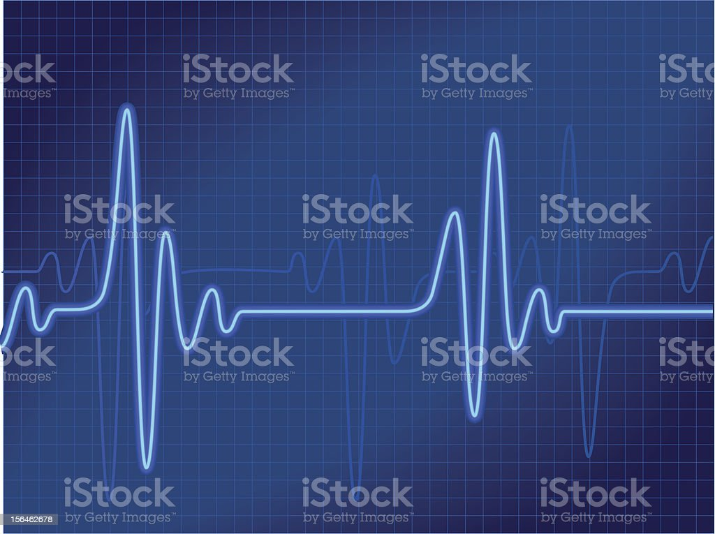 Representation of a cardiogram output in blue vector art illustration