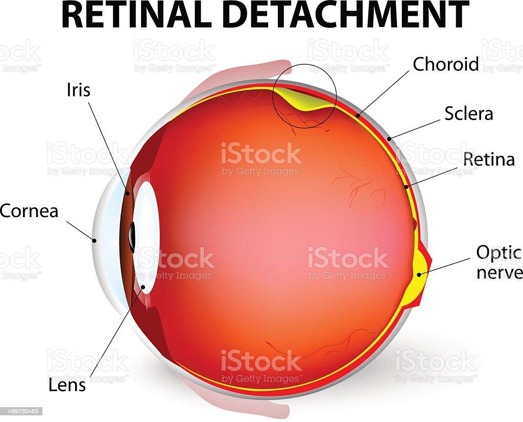 Retinal detachment. Vector diagram vector art illustration