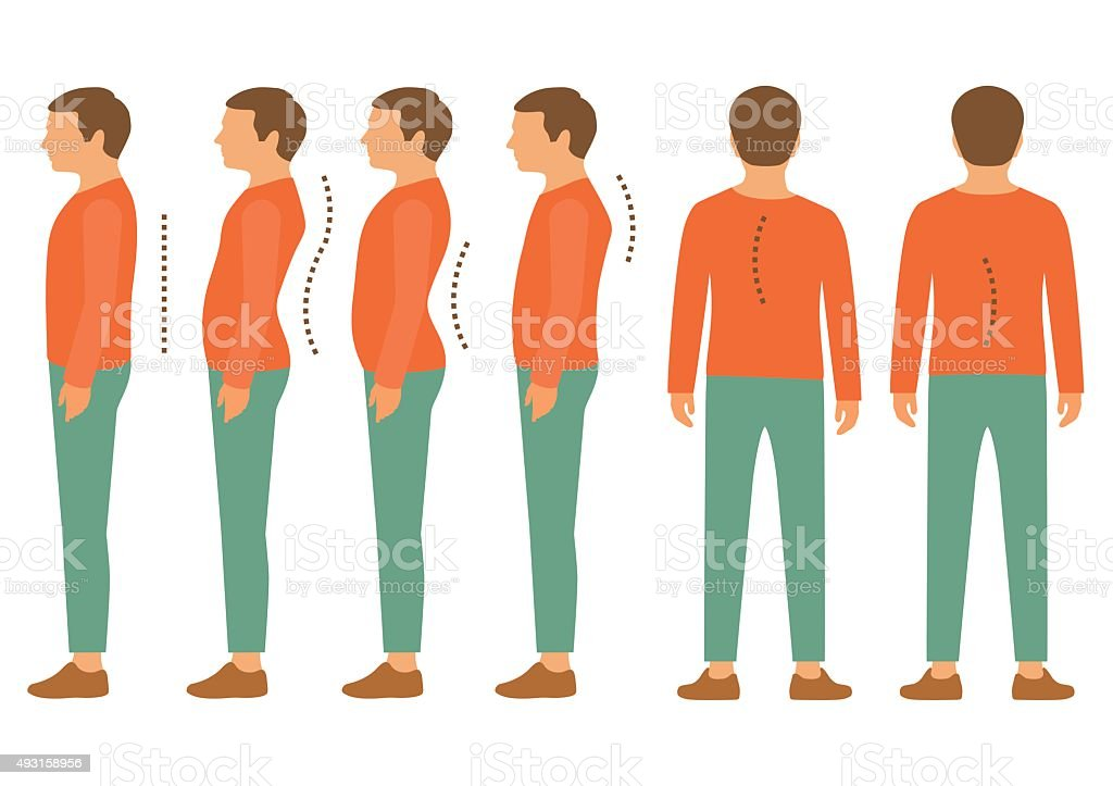 scoliosis, lordosis spine vector art illustration
