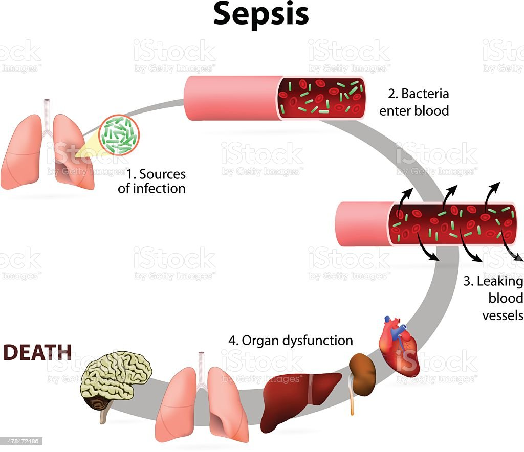 Sepsis vector art illustration