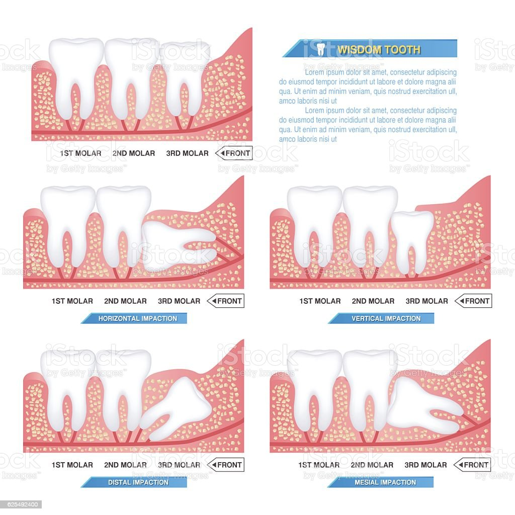 set of impacted wisdom tooth, dental problems vector art illustration