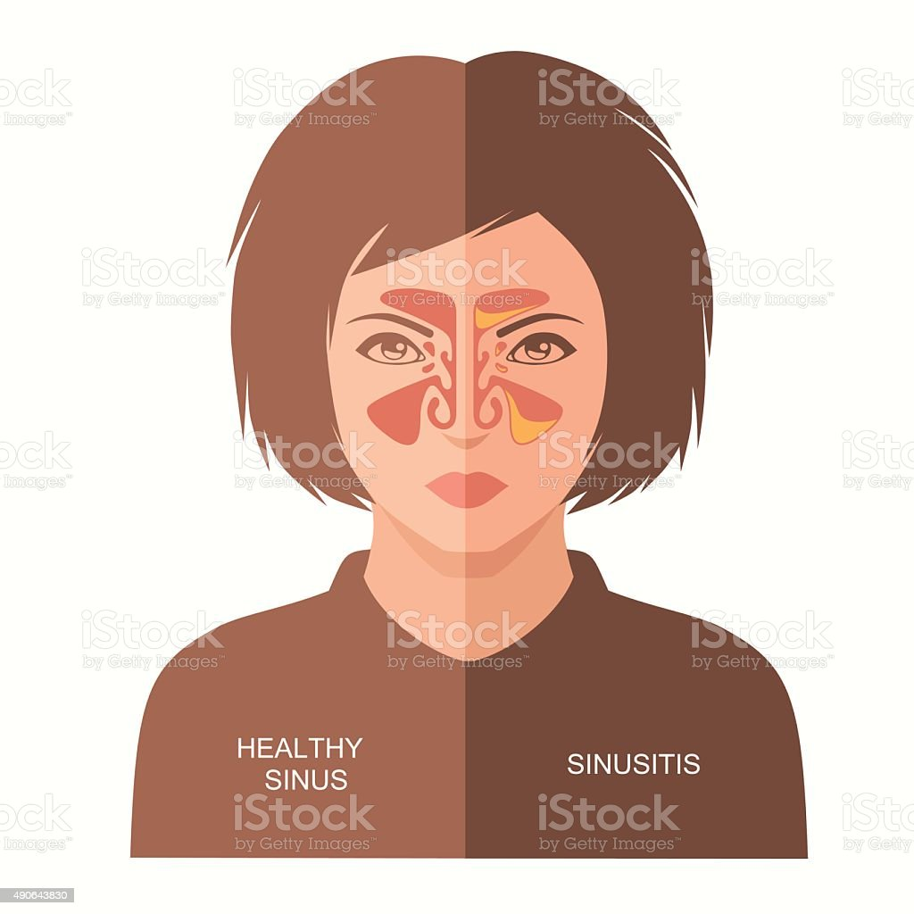 sinusitis disease, vector art illustration