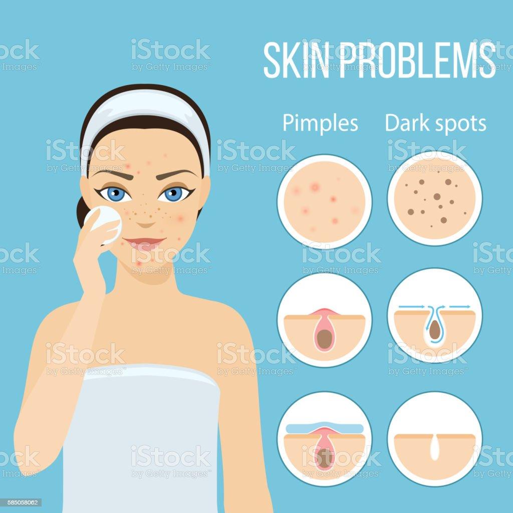 Skin problems solution lotion vector art illustration