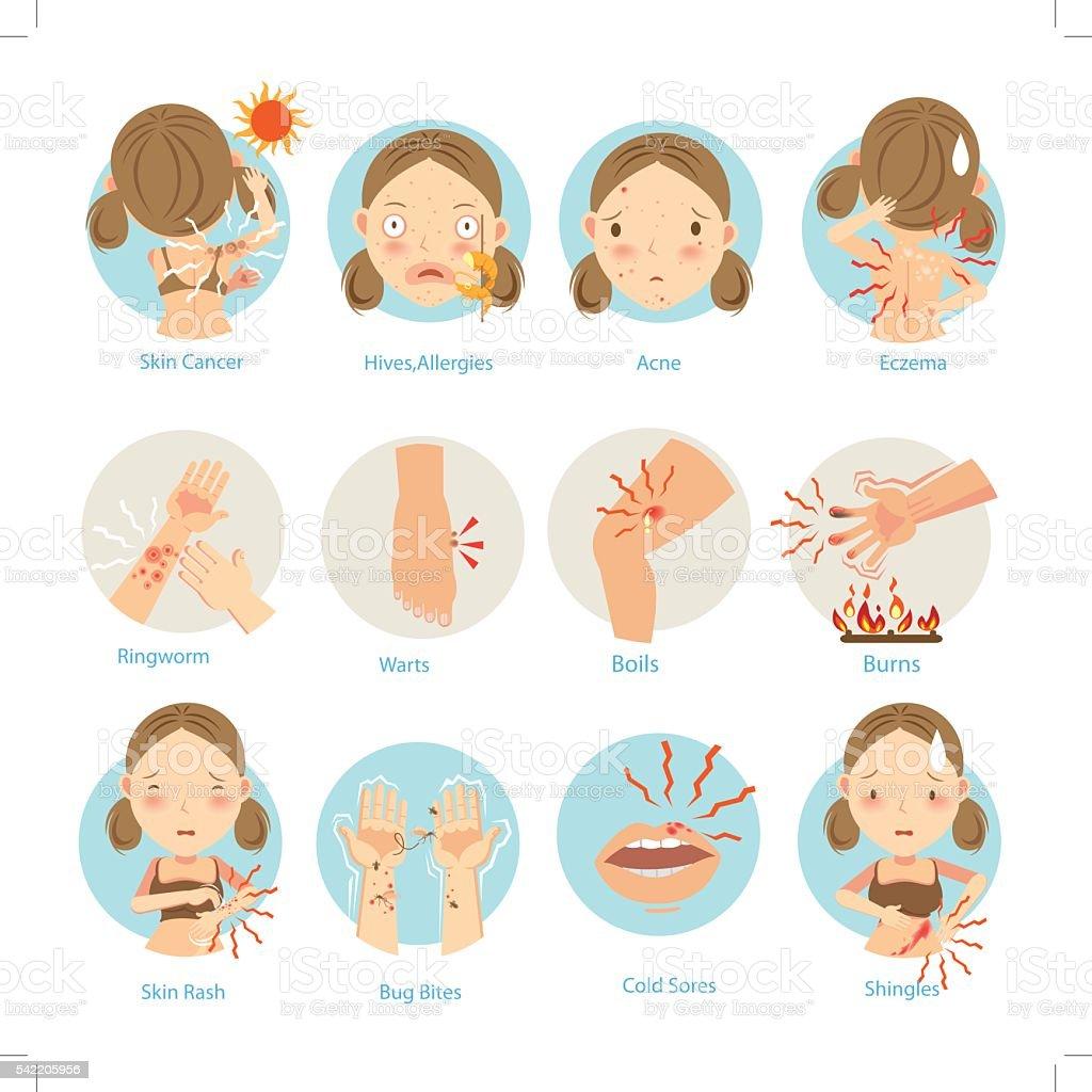 Skin Problems vector art illustration