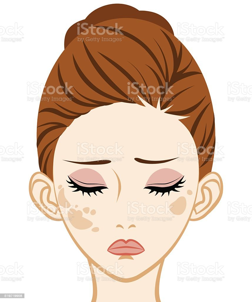 Spotted - Facial Skin Trouble vector art illustration