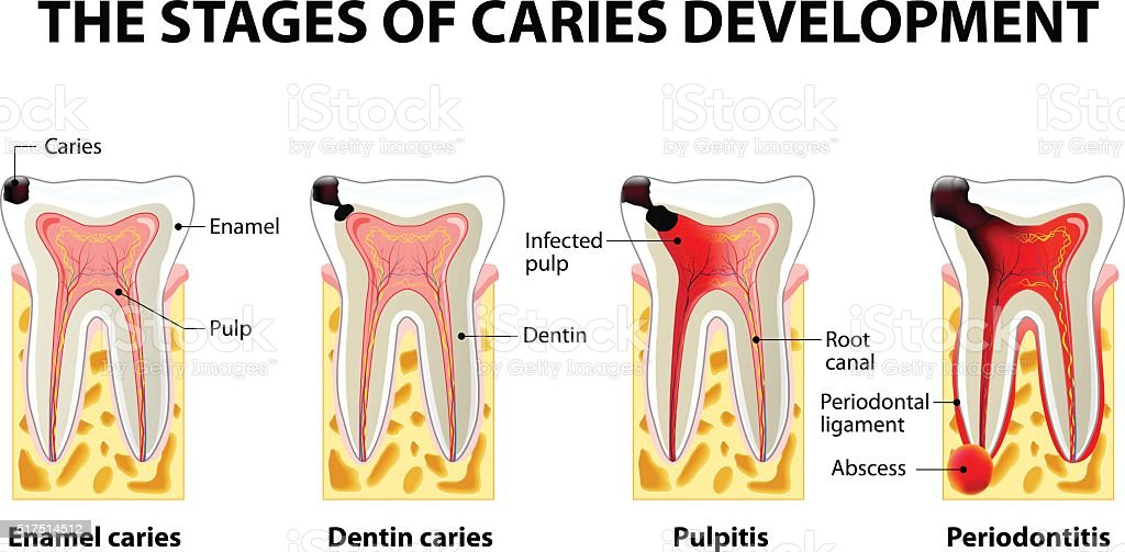 stages of caries development vector art illustration