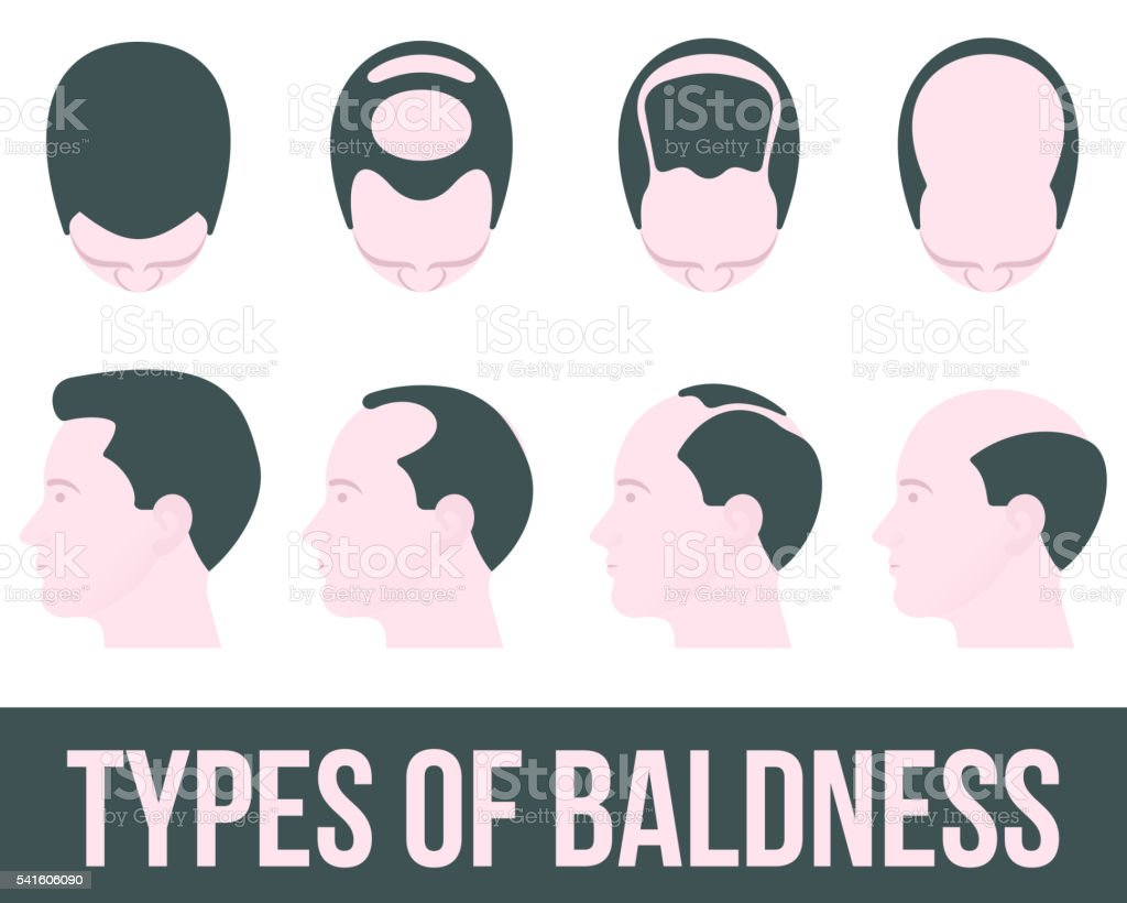 Stages of hair loss and treatment vector art illustration