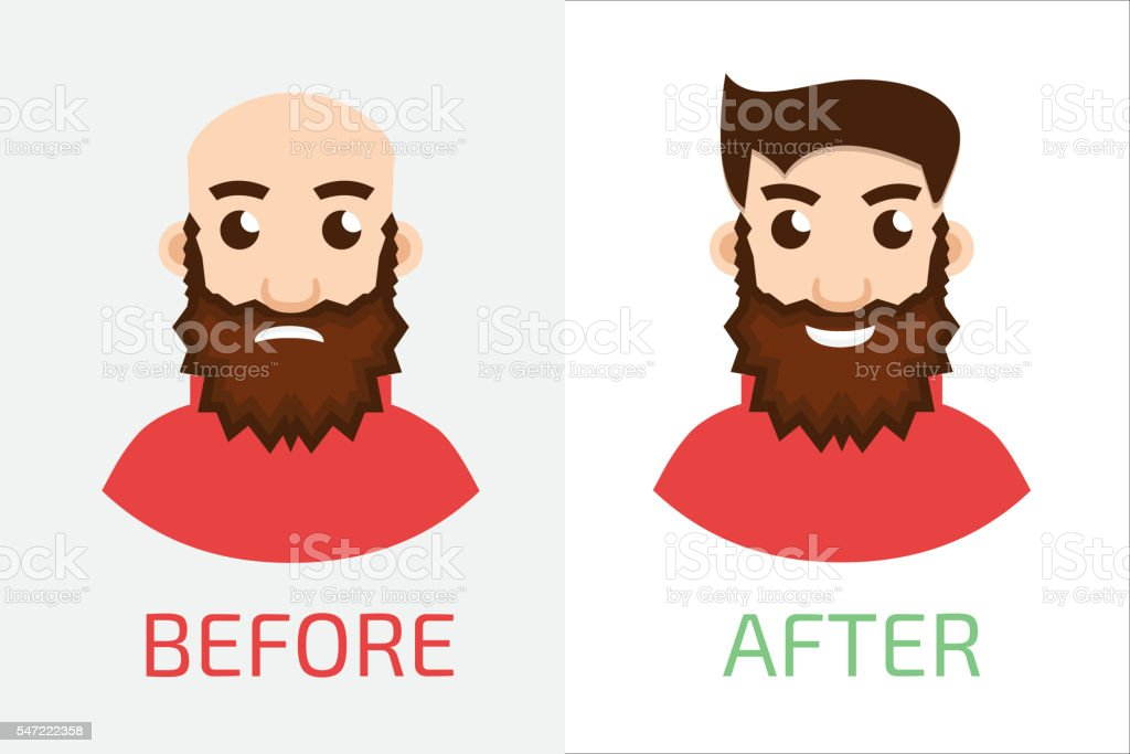 Stages Of Hair Loss new before and after vector art illustration
