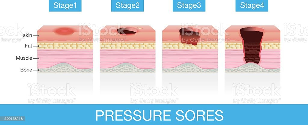 Stages of Pressure Sores vector art illustration