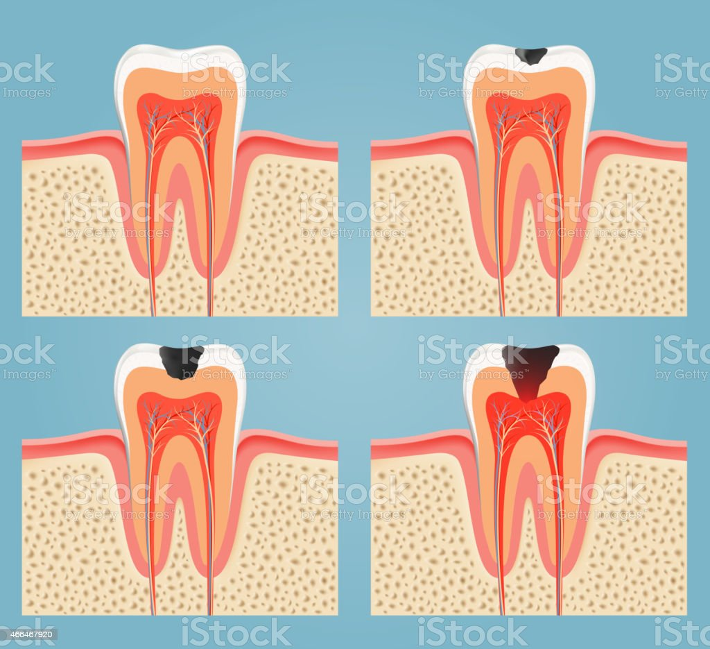 stages of tooth decay vector art illustration
