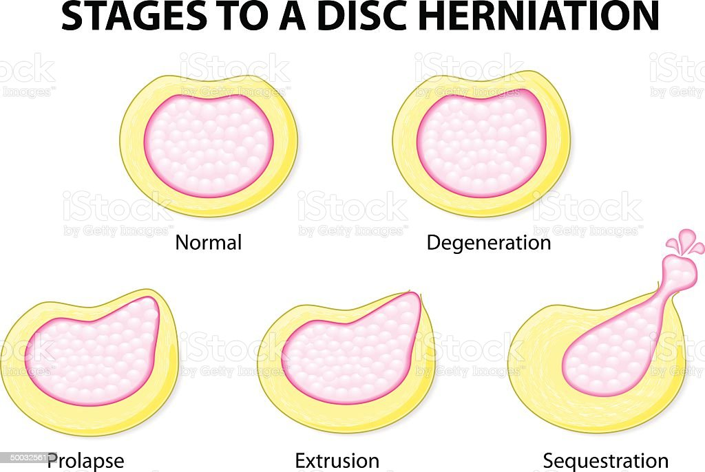 stages to a disc herniation vector art illustration
