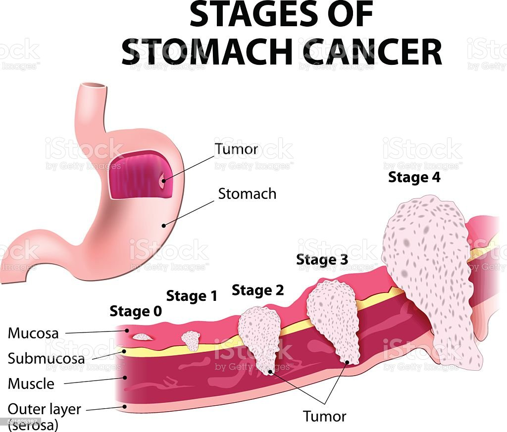 Staging of stomach cancer vector art illustration