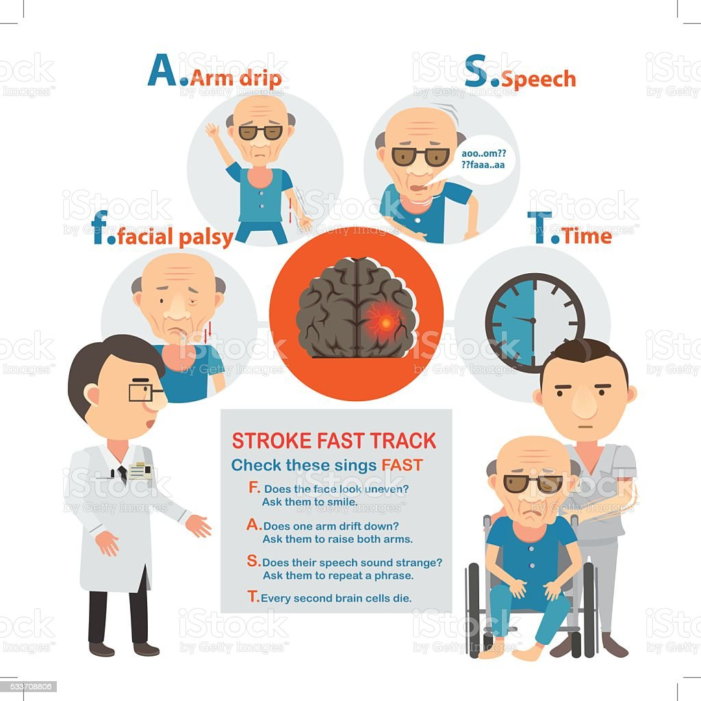 stroke brain vector art illustration