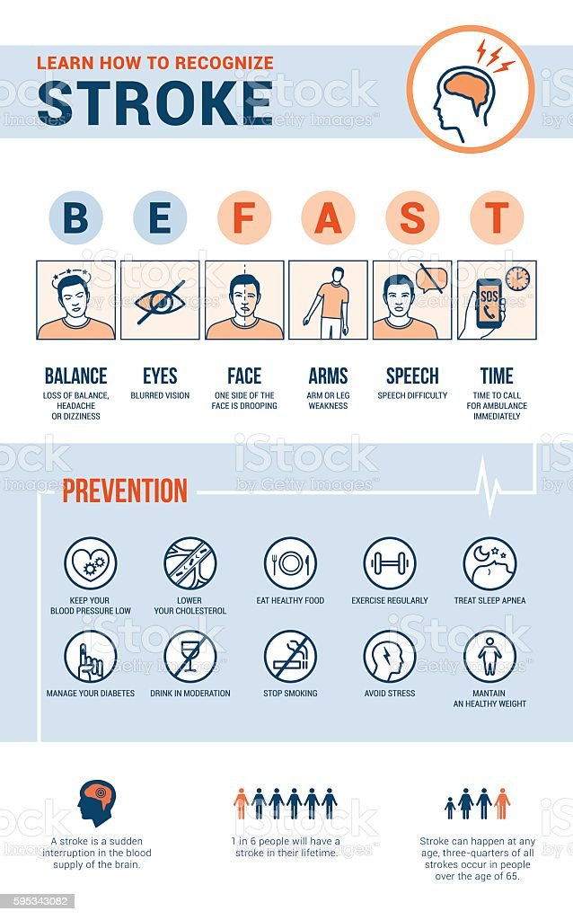 Stroke emergency vector art illustration