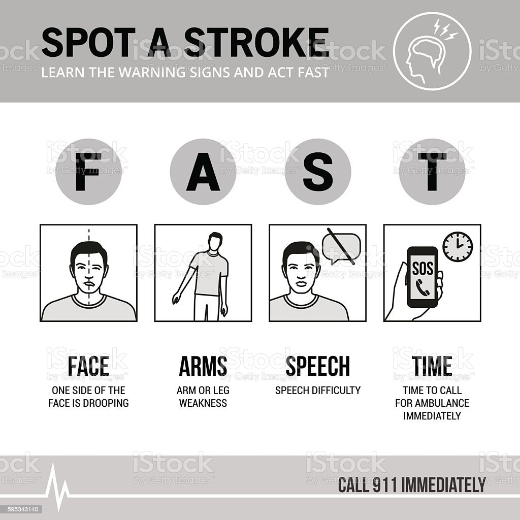 Stroke emergency vector art illustration