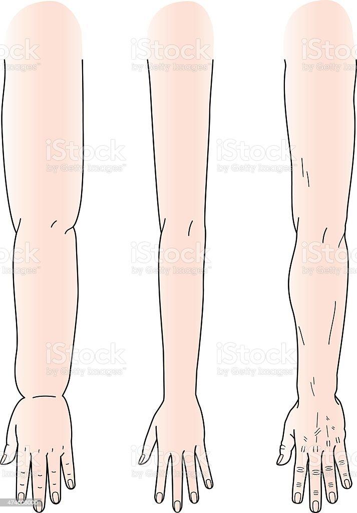 School Lunch Clipart Edema in Legs Clip Art...