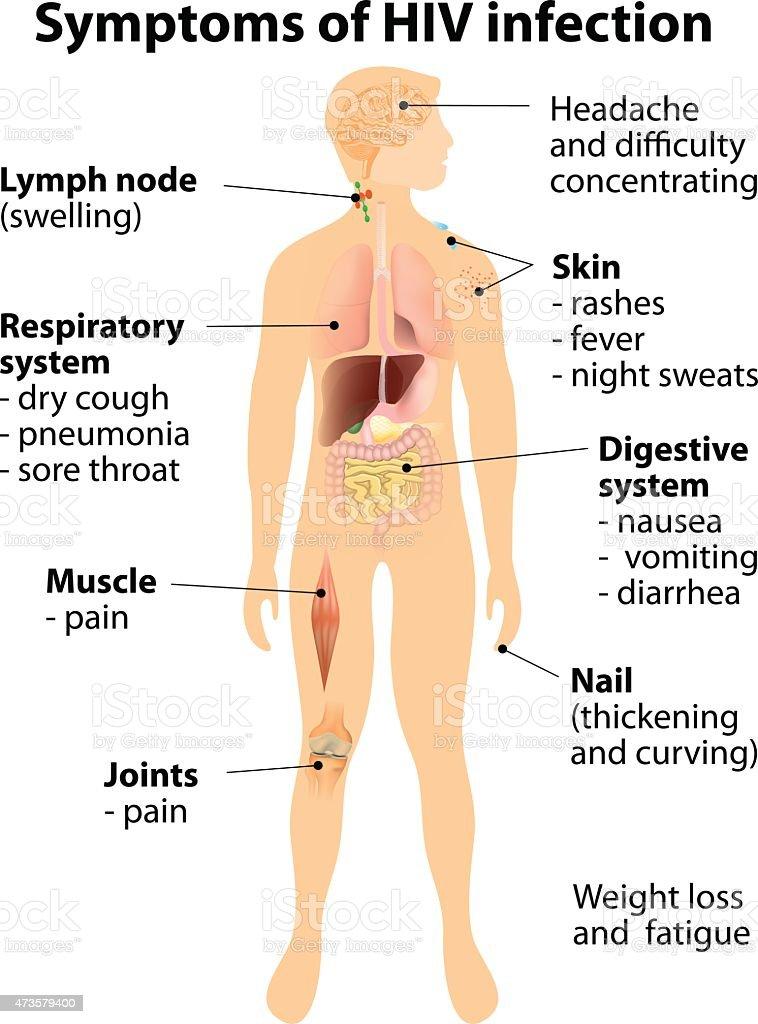 Symptoms of HIV infection vector art illustration
