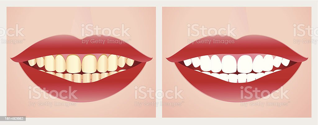 Teeth whitening before and after the treatment. royalty-free stock vector art