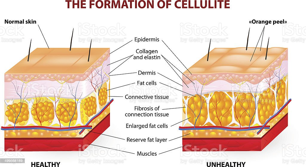 The formation of cellulite. Vector diagram vector art illustration