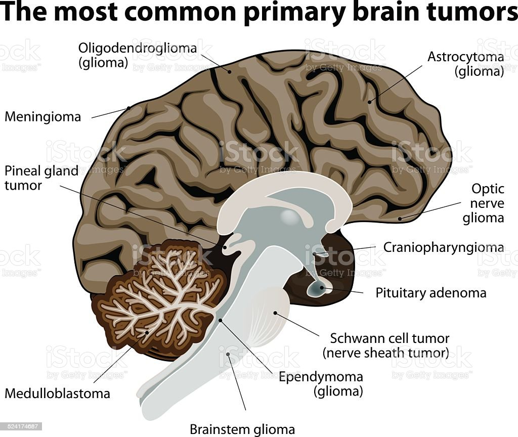 The most common primary brain tumors vector art illustration