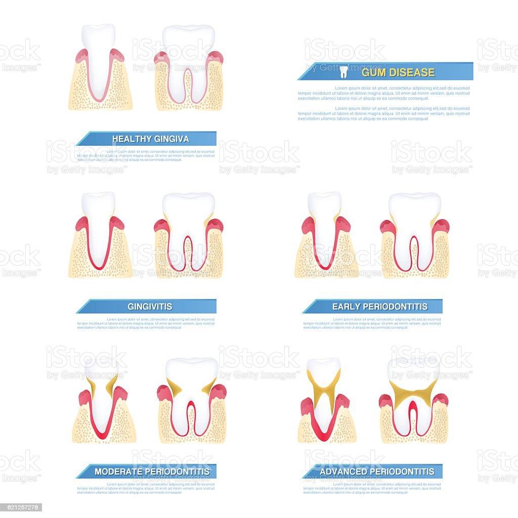 the progress of periodontal disease, gum disease vector art illustration