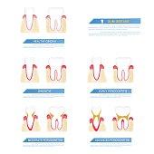 the progress of periodontal disease, gum disease