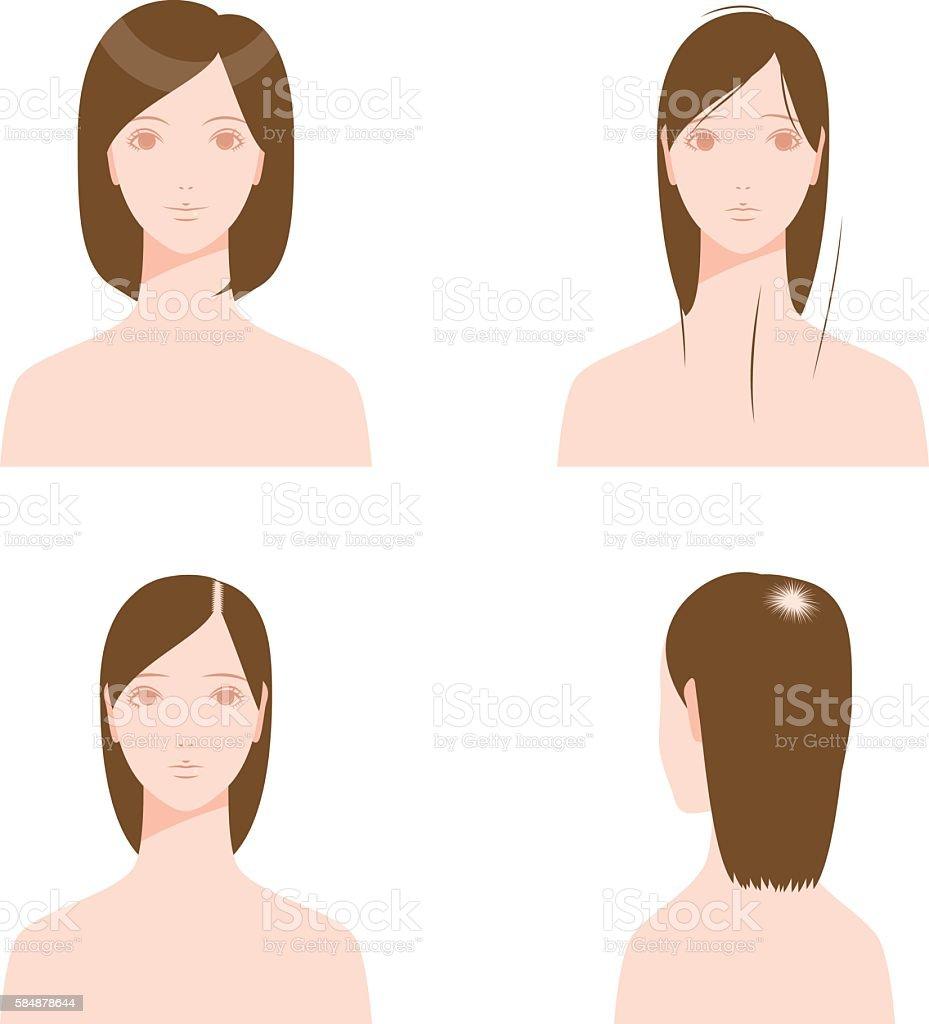 Thin hair. Hair troubles. vector art illustration