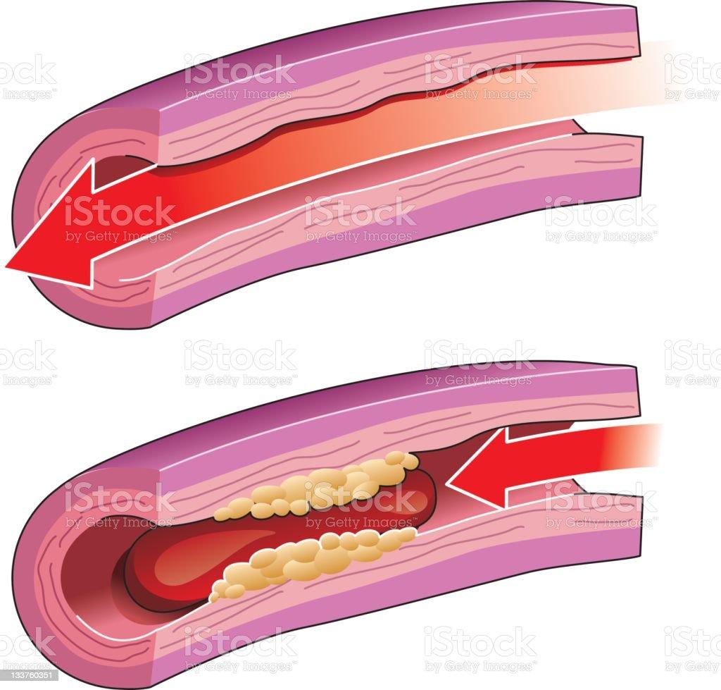 Thrombosis vector art illustration