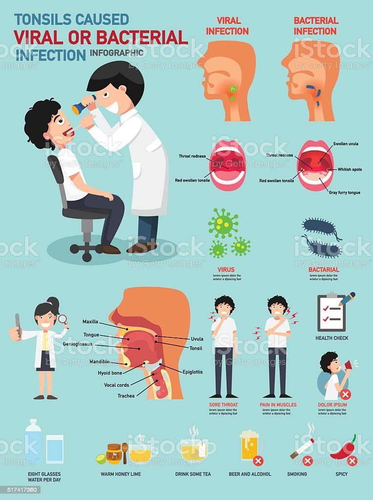 Tonsils caused viral or bacterial infection vector art illustration