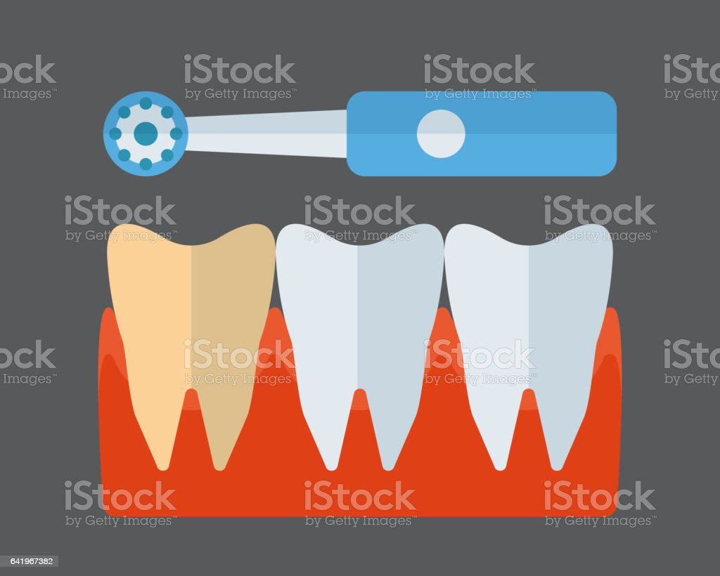 Tooth brush and implants vector icon vector art illustration