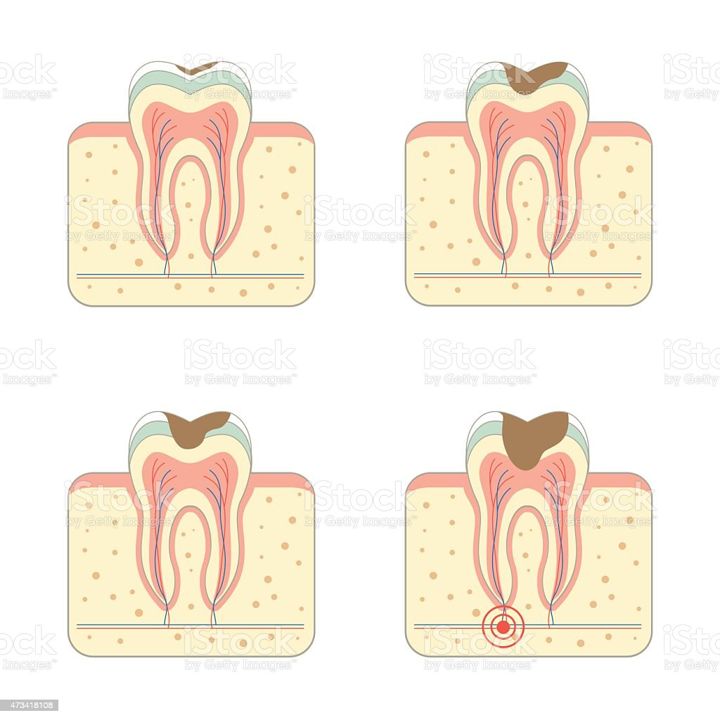 tooth decay disease vector art illustration
